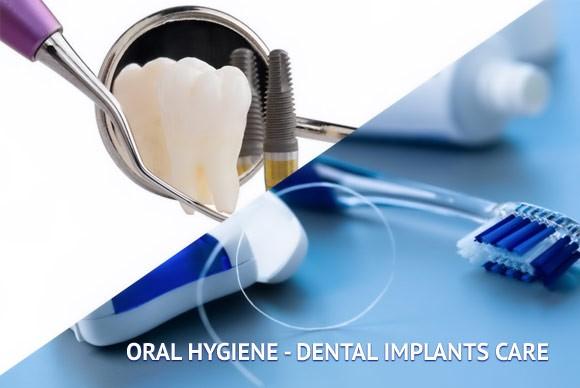 مراقبت بعد از جراحی کاشت ایمپلنت دندان