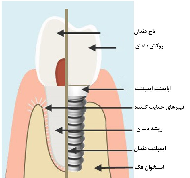 مراحل جراحی و کاشت ایمپلنت دندانی