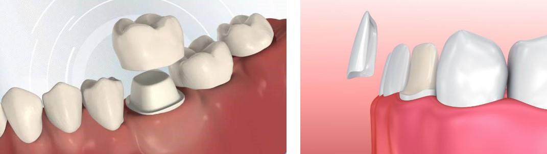 تفاوت ونیر پرسلاین و روکش دندان