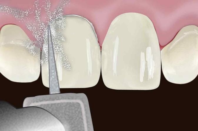مراحل چسباندن ونیر دندان