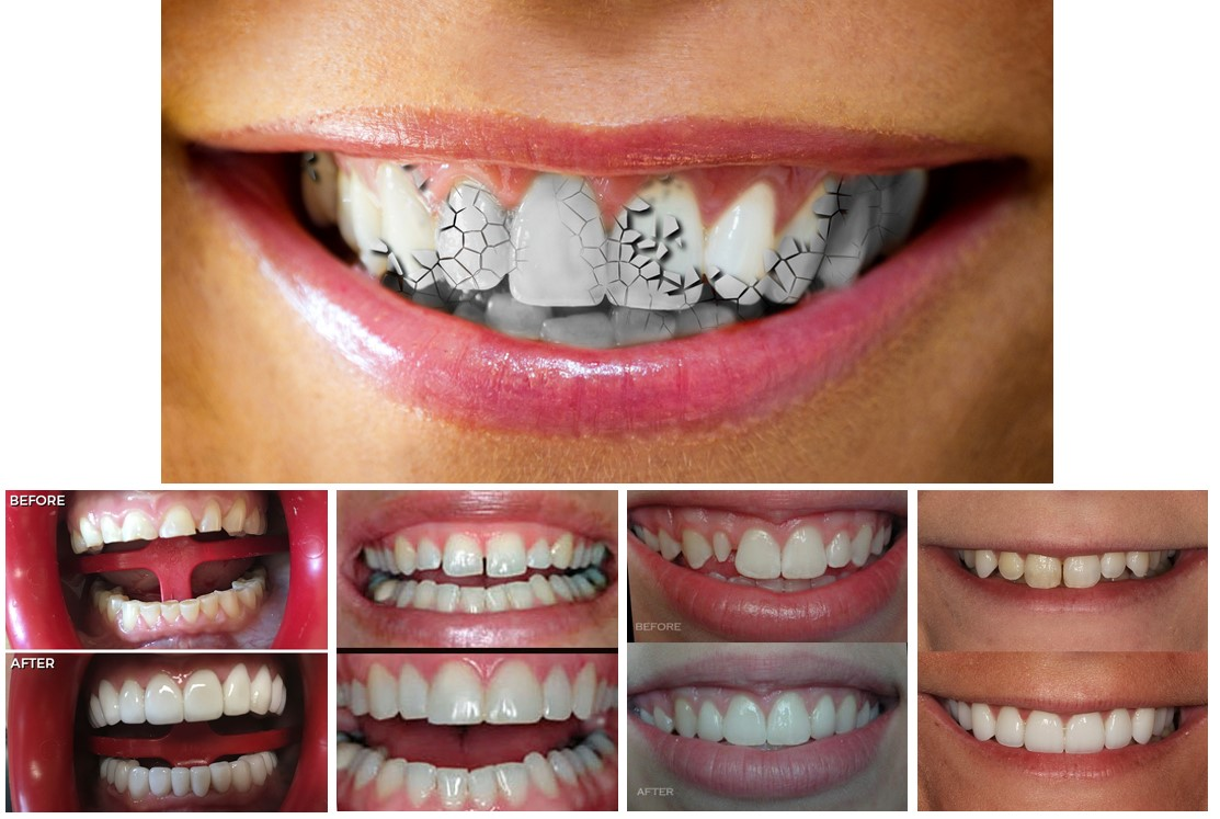 دندانپزشکی زیبایی در ارومیه