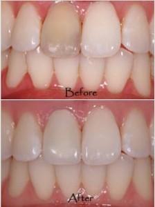 سوالات متداول درباره روکش دندان