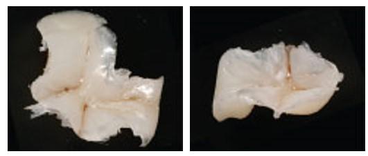 روش های ترمیم دندان