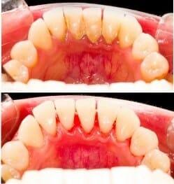 جرمگیری و تسطیح ریشه دندان