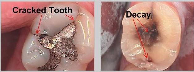 افتادن پرشدگی یا روکش دندان