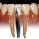 دوام ایمپلنت های دندانی