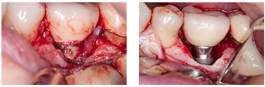 پری ایمپلنتایتیس عفونت ایمپلنت دندانی