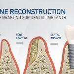 پیوند یا تقویت استخوان قبل از کاشت ایمپلنت های دندانی