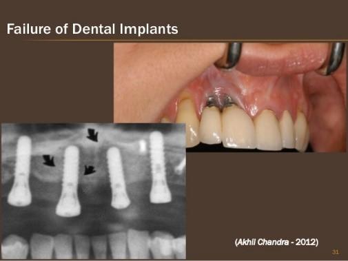 تأثیر سیگار روی شکست ایمپلنت دندانی