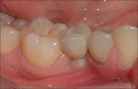 مراحل نصب روکش به ایمپلنت دندانی
