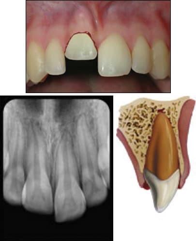 انواع حوادث دندانی