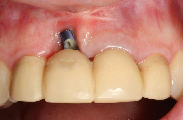 علل شکست ایمپلنت های دندانی