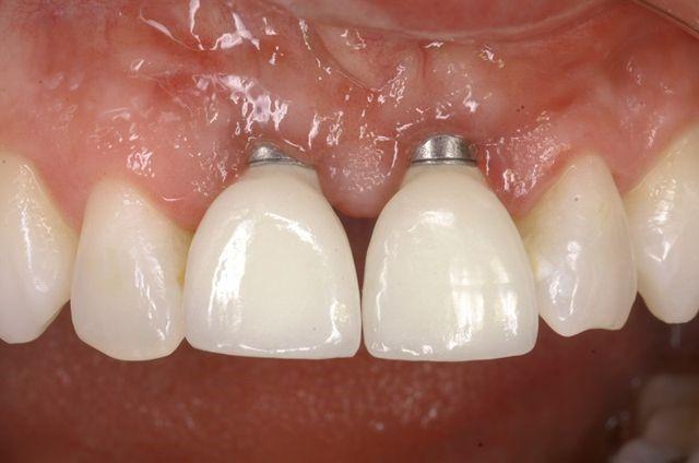 شل شدن ایمپلنت های دندانی