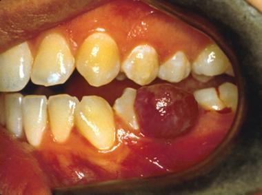 علل برآمدگی داخل دهان