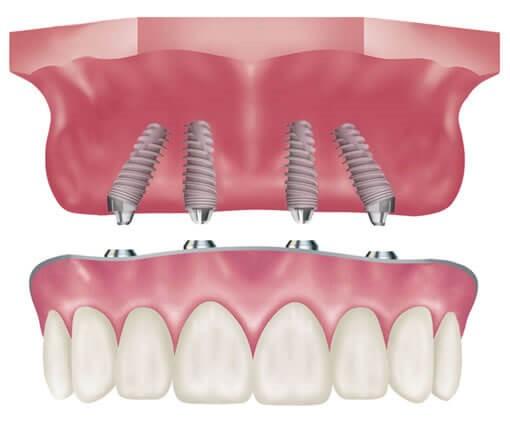 ایمپلنت های دندانی فوری یا یک روزه