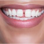 دیاستم یا فاصله بین دندان ها