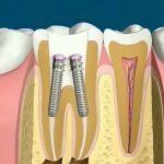 استفاده از پست و کور دندان