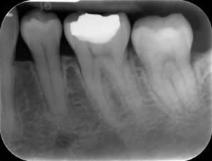 تصاویر رادیوگرافی در دندانپزشکی