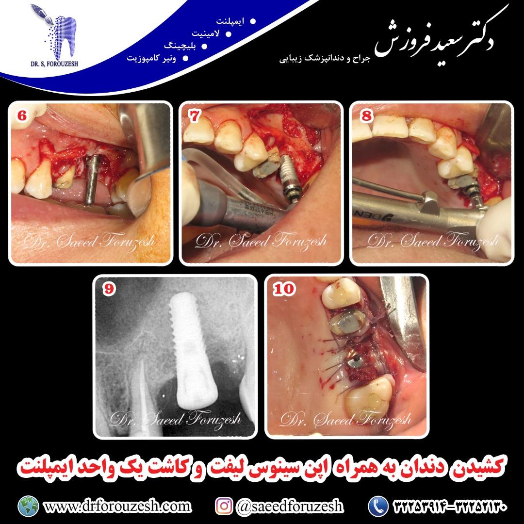 کشیدن دندان به همراه اپن سینو لیفت و کاشت یک واحد ایمپلنت