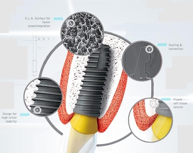دسته بندی ایمپلنت های دندانی