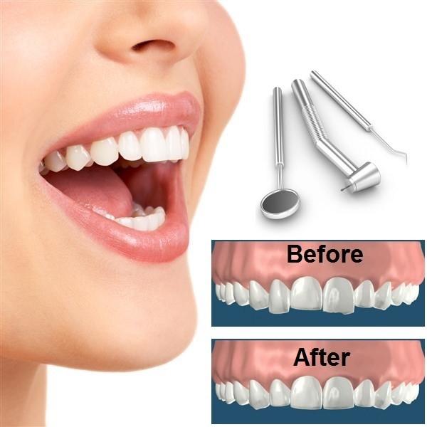 کانتورینگ یا تراش مینای دندان