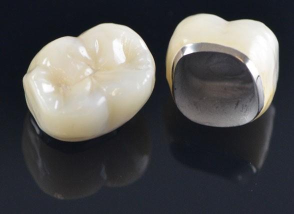 مواد روکش های دندانی