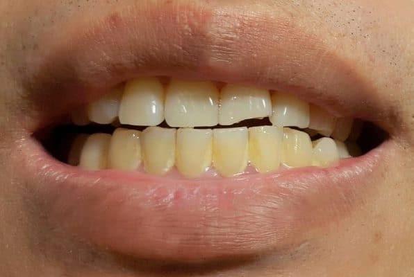 جرم، رسوب، و پلاک دندان