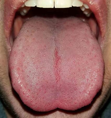 پاکسازی زبان