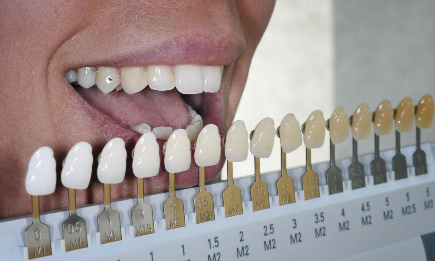 آشنایی با انواع لکه و تغییر رنگ دندان