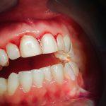 بیماری لثه یا پریودنتیت چیست؟