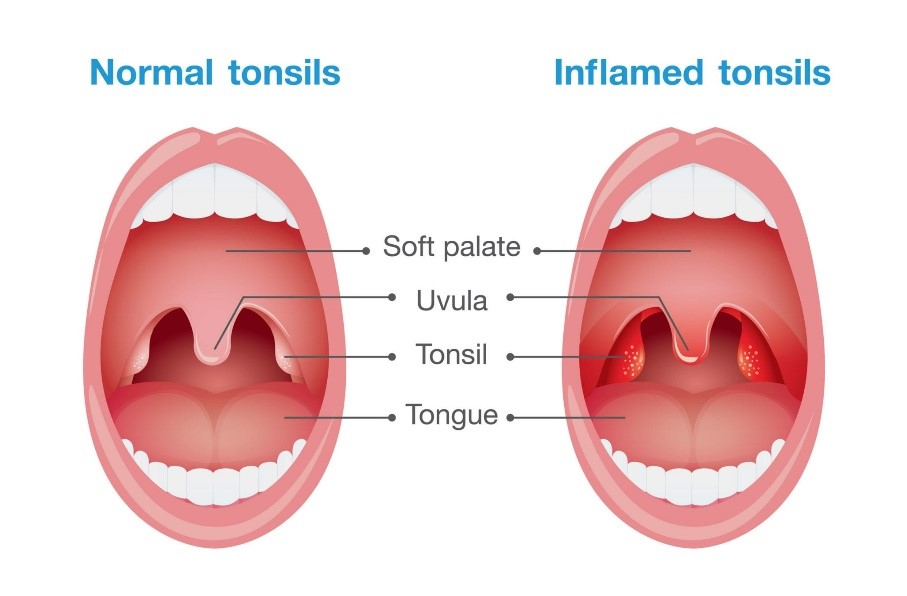 علل بوی بد دهان و درمان آن